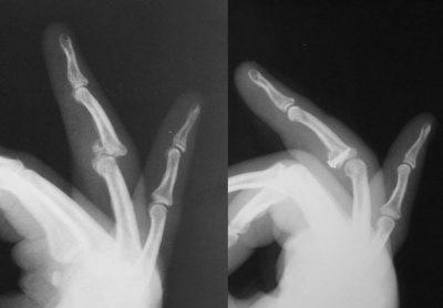 В Кемерове травматологи провели уникальную операцию на руке