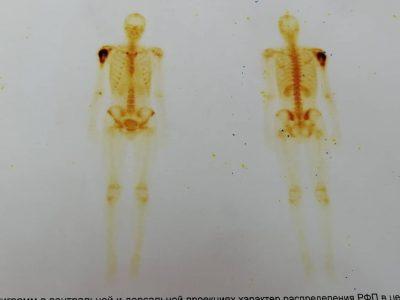 В Кузбассе врачи нашли рак у подростка, который стеснялся говорить о боли